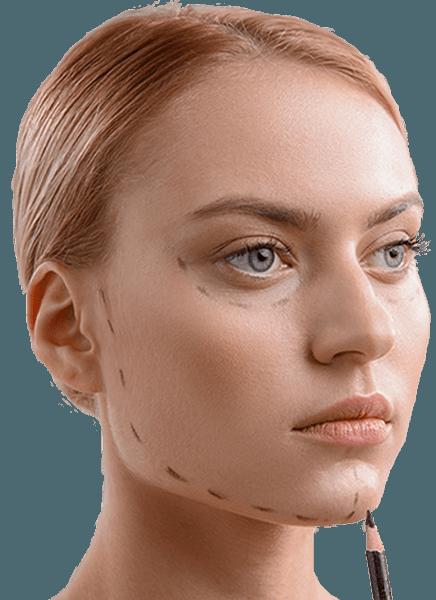 Çene ucu estetiği öncesi yüz simetrisi işaretlenmiş sarışın kadın