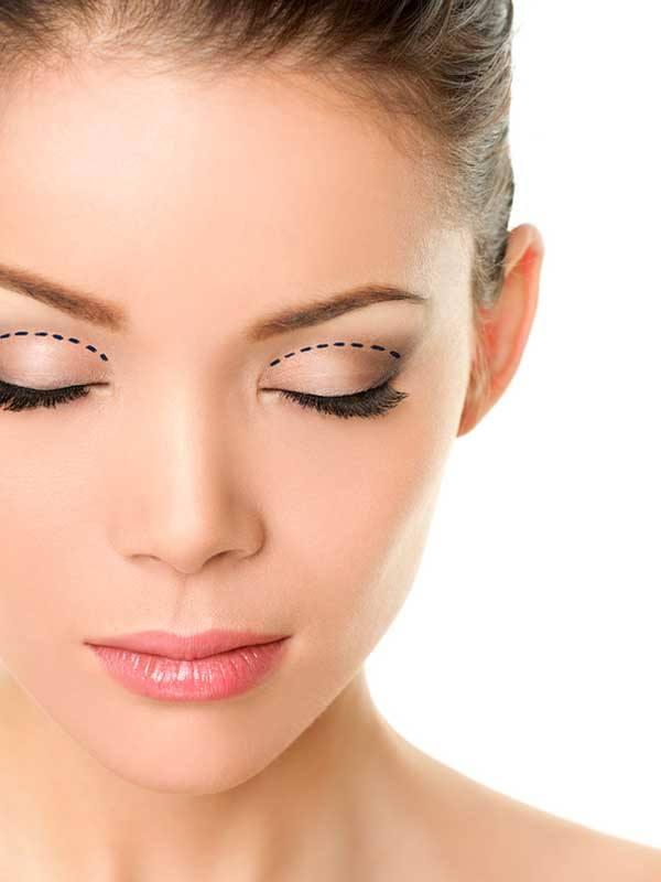 Üst göz kapağı estetiği öncesi işaretleme yapılmış genç kadın
