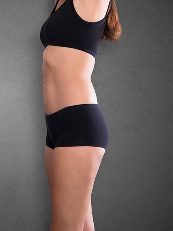 Liposuction sonrası siyah mayolu kadın